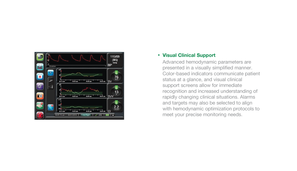 EV1000 Visual Clinical Support