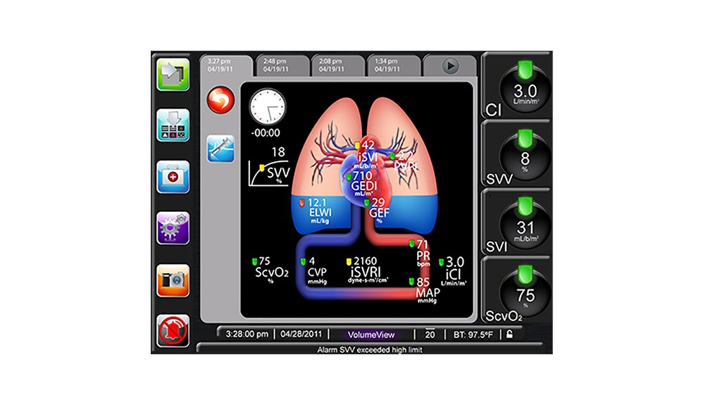 Intermittent Physiology Screen