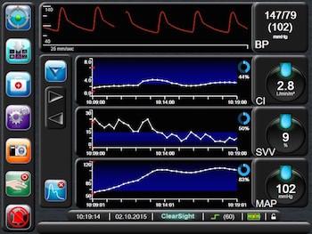 PGDT analytics software