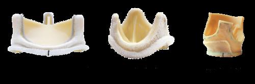 Tissue Valves (Bioprosthetic Valves)