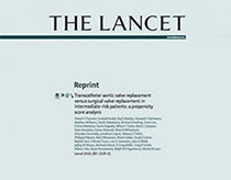 SAPIEN 3 valve intermediate-risk article from The Lancet