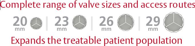 Complete range of valve sizes