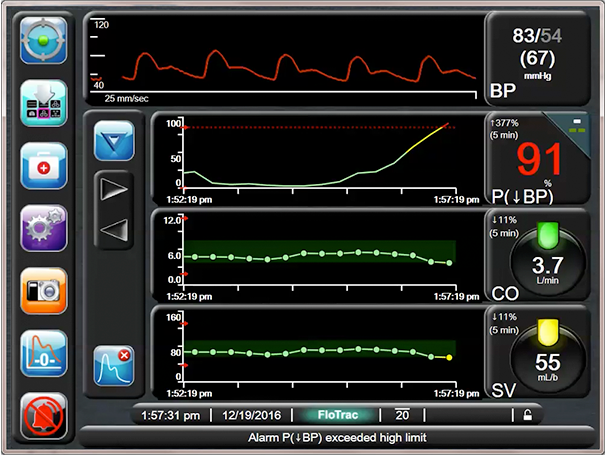 Hypotension Probability Parameter