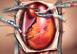 Cânulas arteriais