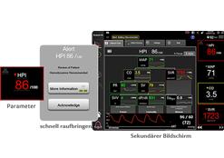 Acumen Hypotension Prediction Index (HPI) software