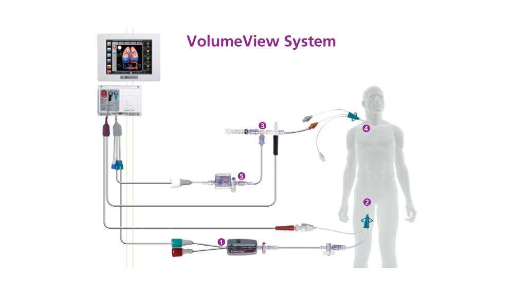 VolumeView– Systemeinrichtung