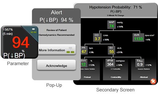Acumen Hypotension Probability Indicator Software