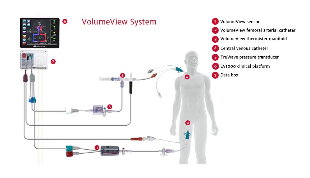 VolumeView System Setup
