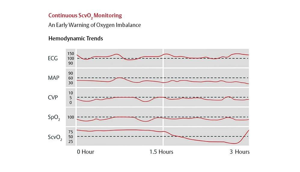 Continuous measurement of ScvO2 can be used as a reliable monitor of cardiocirculatory function.