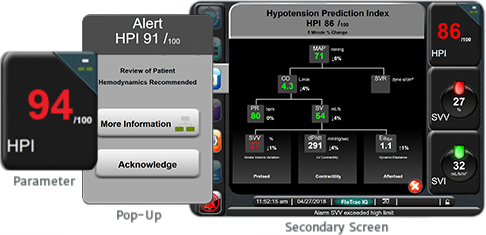 Acumen Hypotension Prediction Index Software