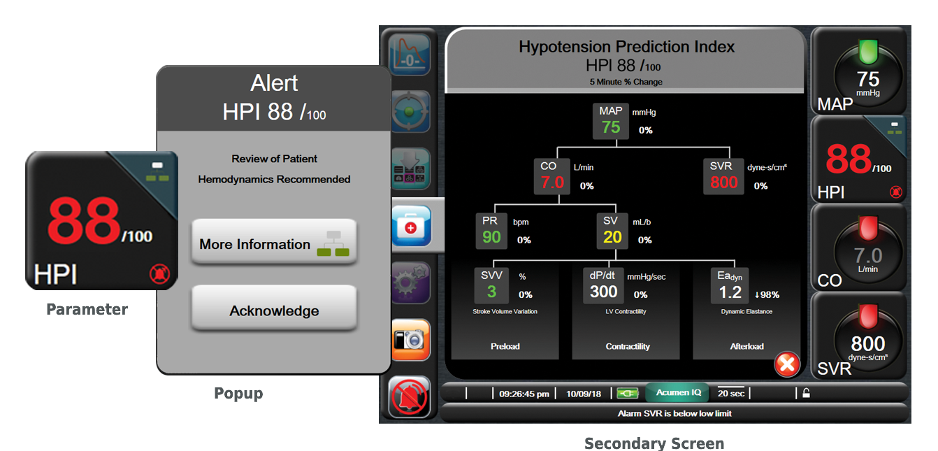 HPI provides you with information regarding the likelihood of a patient trending toward a hypotensive event.