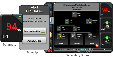 Acumen Hypotension probablility indicator software