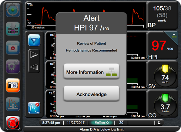 High-Alert Hypotension Probability Pop-Up