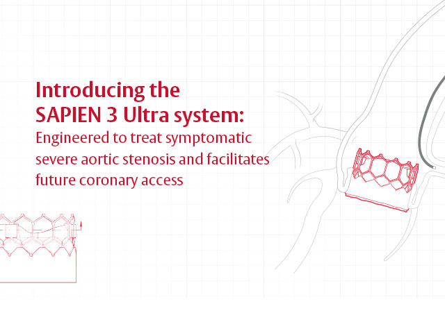 Sapien 3 Ultra system mobile slide 3