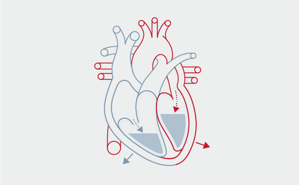 Preload is the tension of myocardial fibers at the end of diastole, as a result of volume in the ventricle.