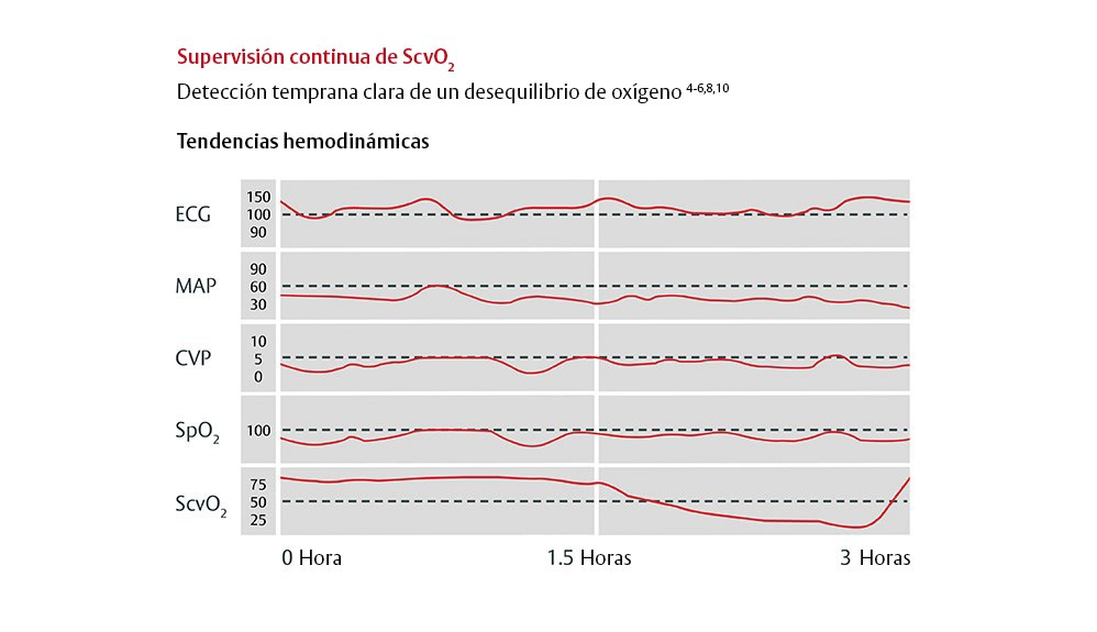 Tendencias hemodinámicas