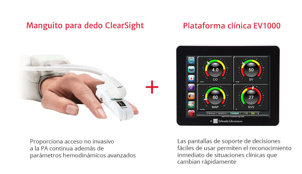Manguito para el dedo ClearSight + EV1000