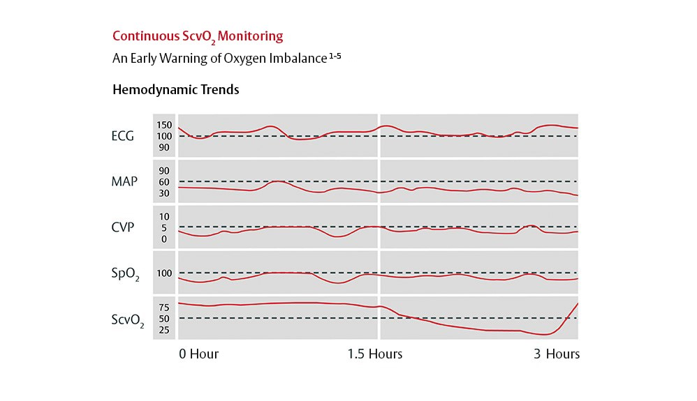Charts showing continuous ScvO2 monitoring hemodynamic trends