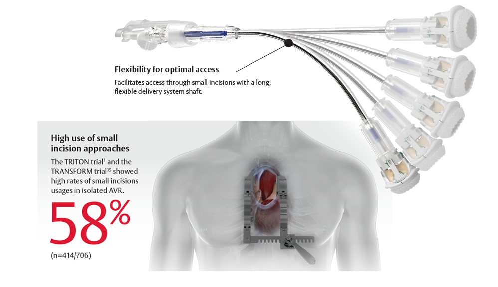 Intuity Elite with flexible delivery system shaft. High use of small incision approaches