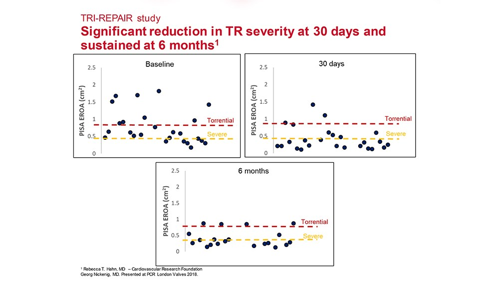 Charts showing significant reduction in TR severity at 30 days and sustained at 6 months