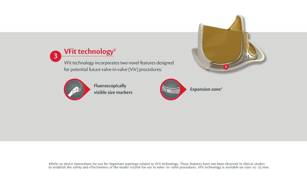 VFit technologyY VFit technology incorporates two novel features designed for potential future valve-in-valve (ViV) procedures