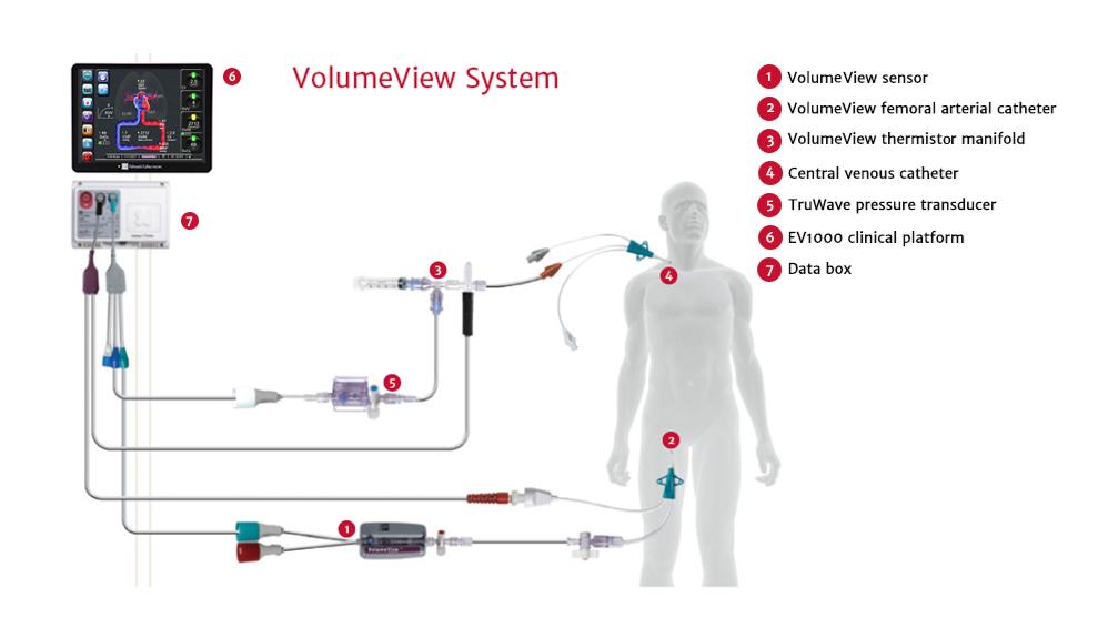 VolumeView System