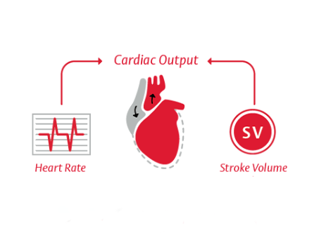 Cardiac Output (CO) = Stroke Volume x Heart Rate
