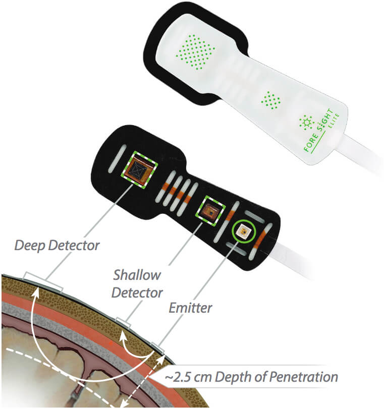 ForeSight Elite Sensor with deep detector, shallow detector, and emitter