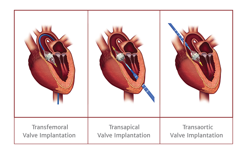 Aortic Stenosis New Treatment Options