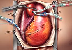 Cannule arteriose
