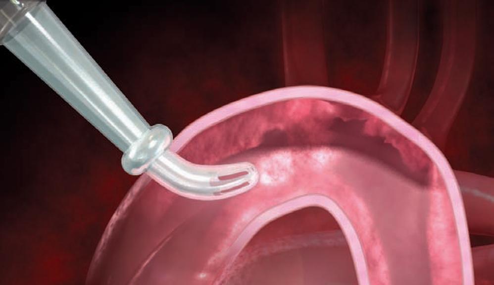 Orientamento centrale della cannula aortica