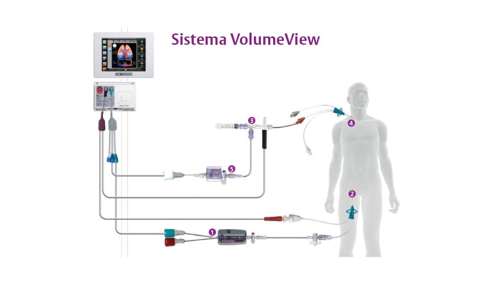 Configurazione del Sistema VolumeView